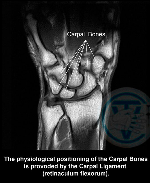 carpal arthrosis deformans